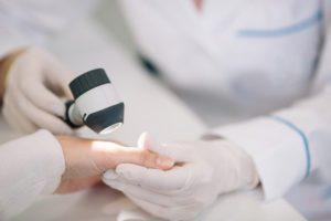 dermatoscopia