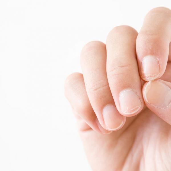 doença das unhas